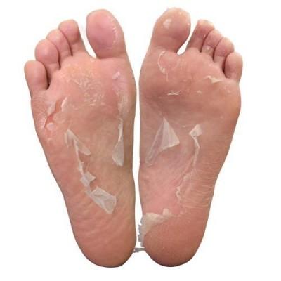 Как отслаивается старая кожа после носочков Sosu